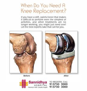 Joint Replacement Surgeon in Bopal, knee replacement hospital in bopal, Joint Replacement Surgeon in South Bopal